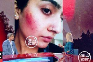 """""""L'ha picchiata mio cugino"""": spunta il livido sul volto di Saman"""